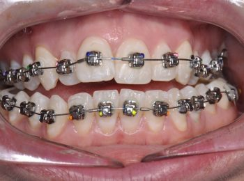 during braces